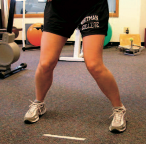Dynamic valgus of both knees